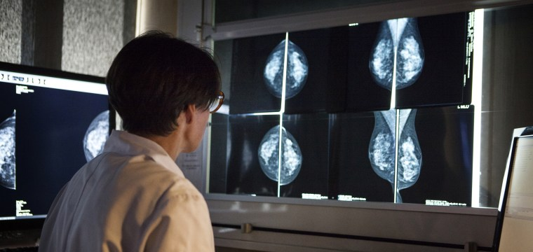 Asian women who immigrate to U.S. may have higher breast cancer risk, research finds