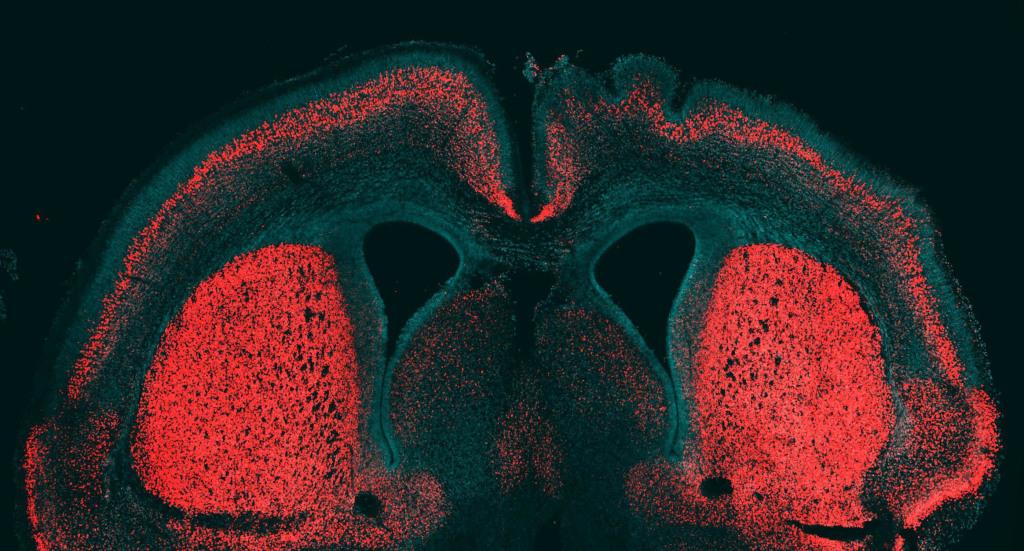 Image: Mouse brain