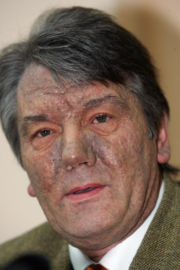 Image: Viktor Yushchenko
