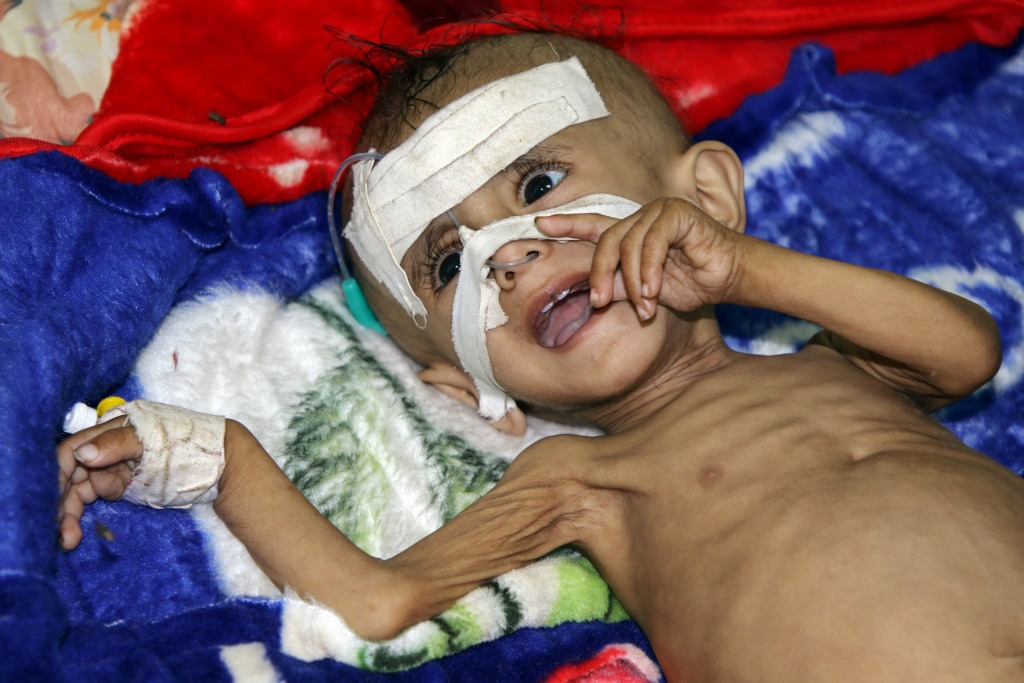 Image: One-year-old Sameer al-Dhanbari, who suffers from severe malnutrition, lies on a bed at a hospital in Houta