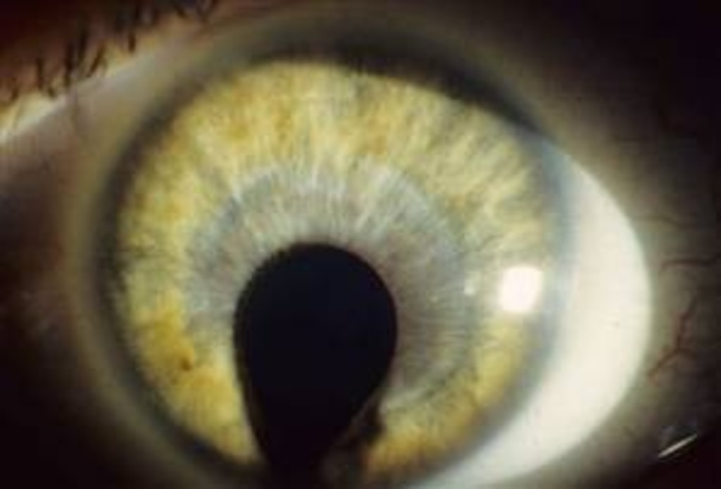 Human with cat eyes syndrome