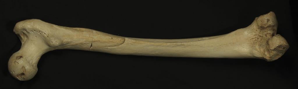 Image: Femur bone
