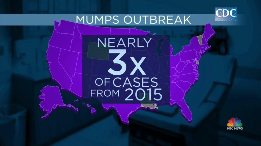 Mumps at 10-Yea... Mumps Cdc
