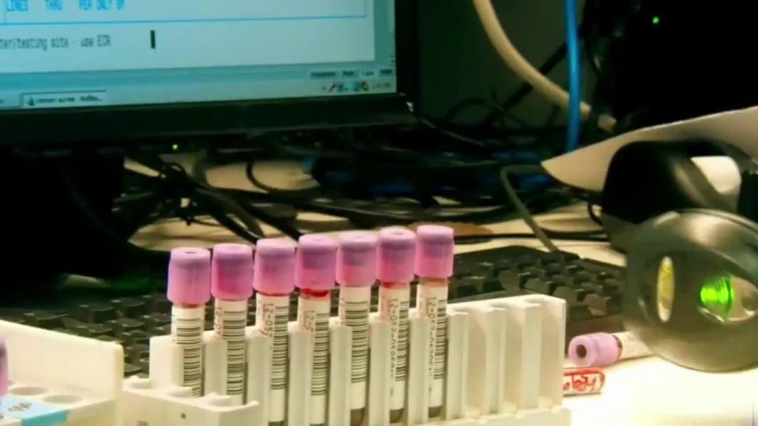 Heartburn Clinical Research Trials | CenterWatch