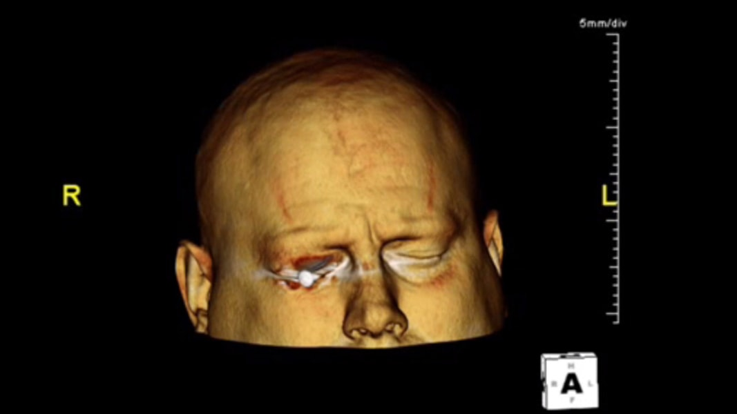CT Scan Shows Nail in Man's Eye - NBC News