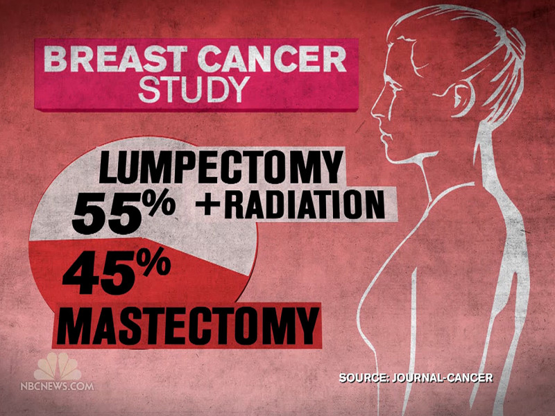 Breast Cancer Patients May Get Longer Radiation Than