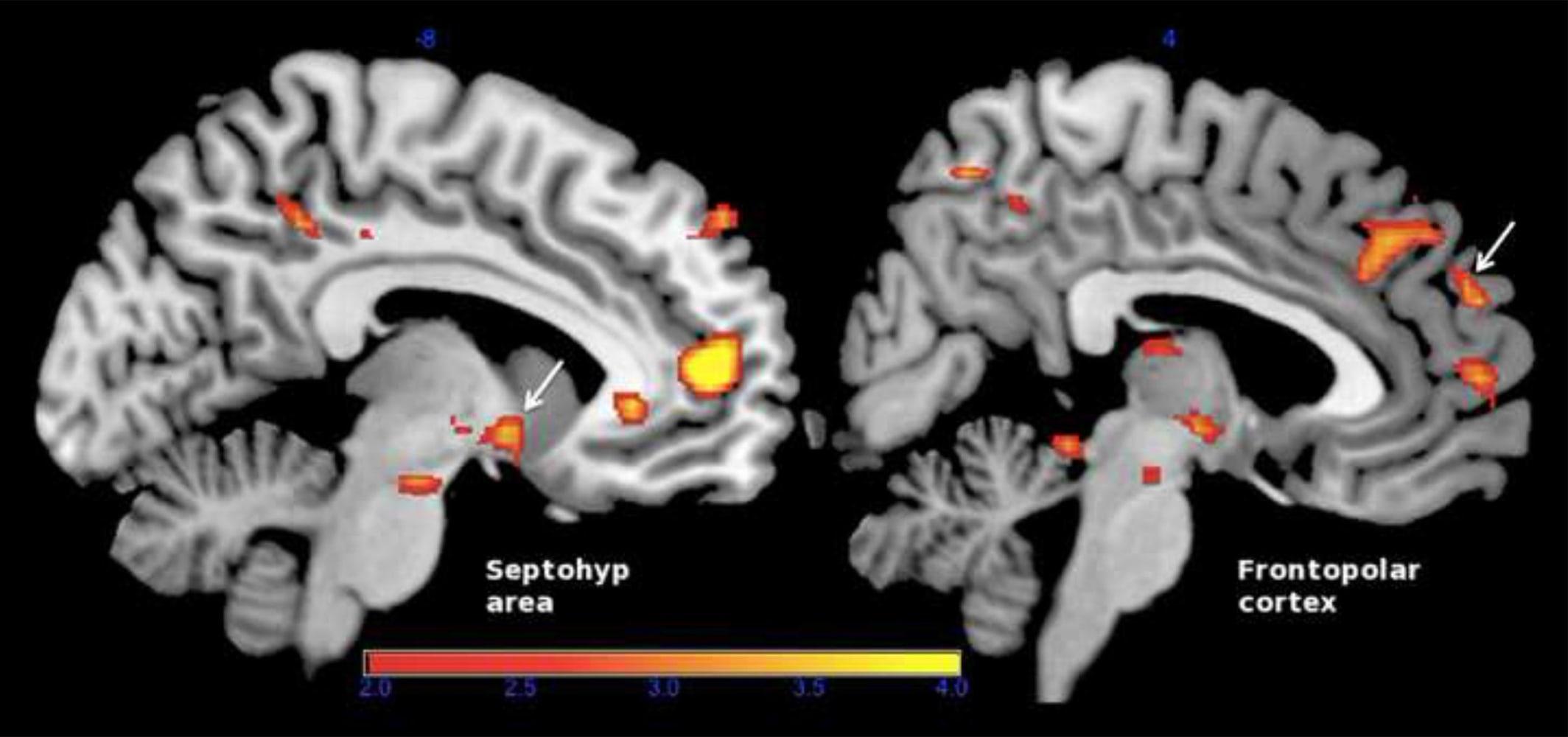 brain tumor essay