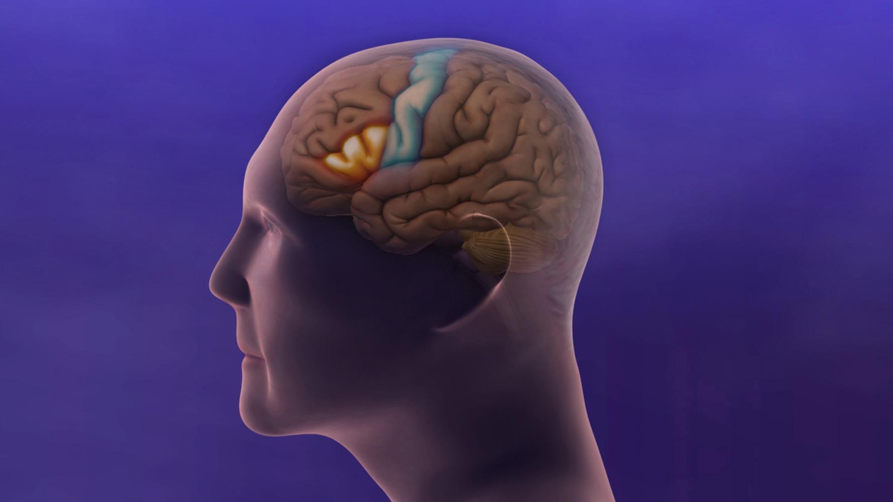 Image result for alzheimer images