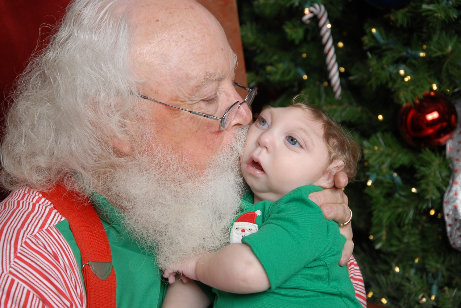 Jaxon strong baby born with partial brain meets santa for first