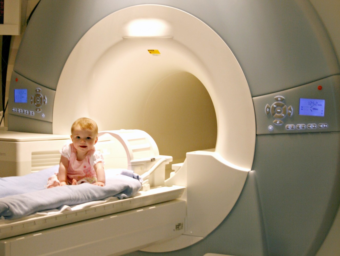 Brain scans spot early signs of autism in high-risk babies