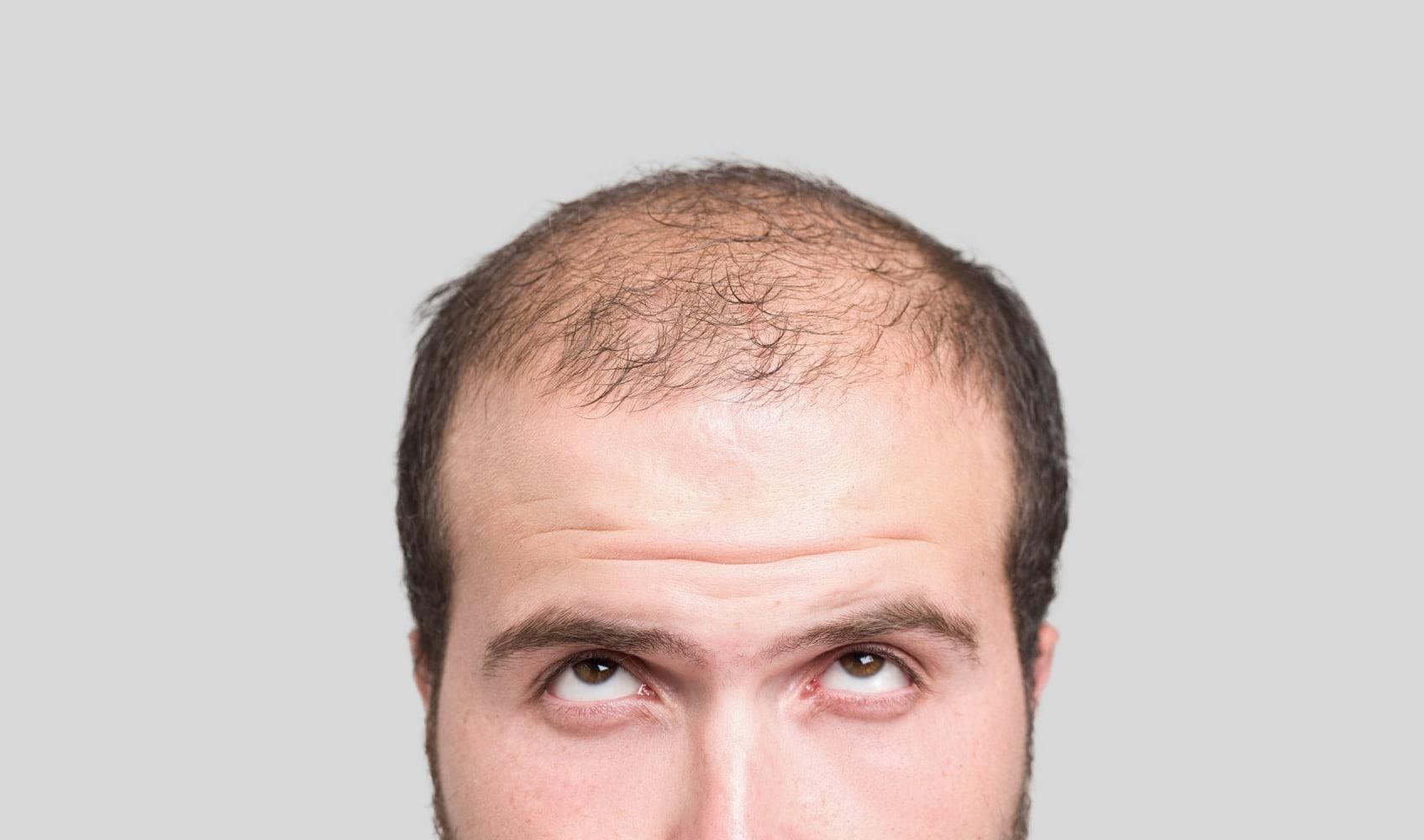Pleasant Hair Loss Drug Propecia Carries Risk Of Losing Something Else Hairstyles For Men Maxibearus