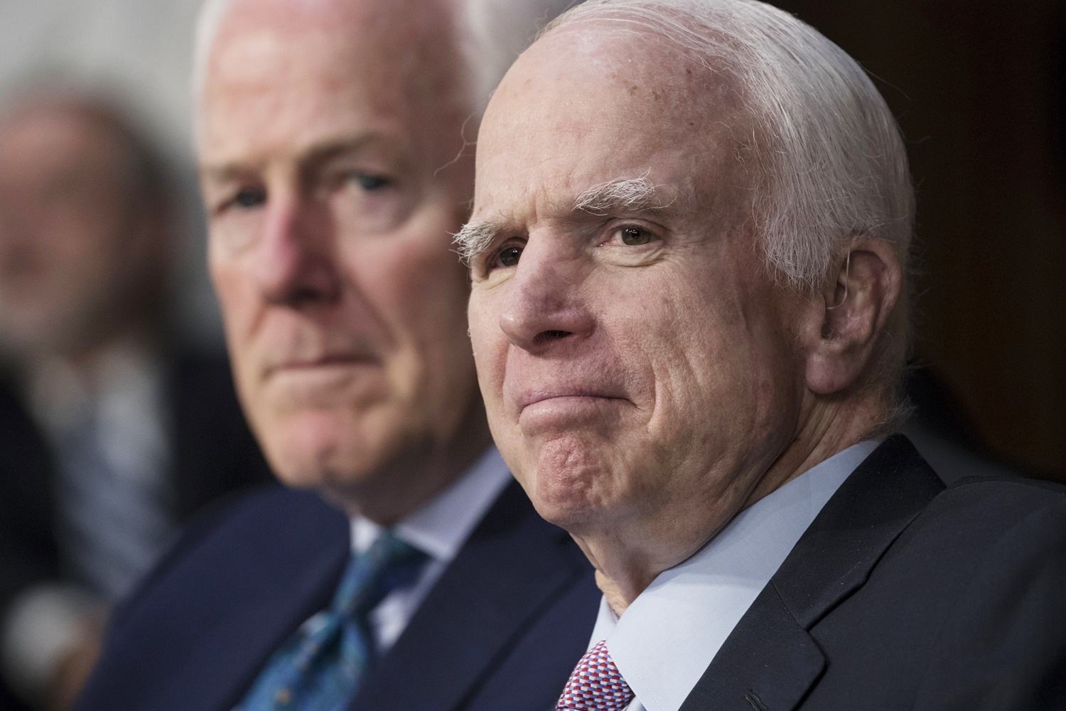 Doctors remove blood clot above Sen. McCain's eye