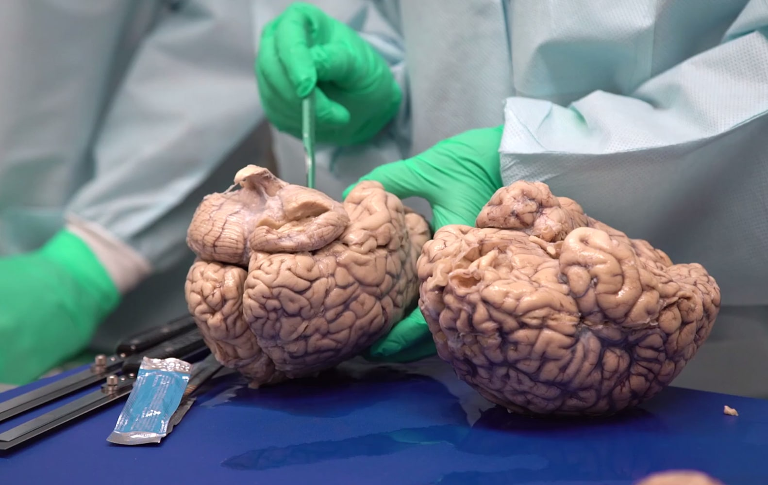 Study: Hits, Not Concussions, Cause CTE - Boston University