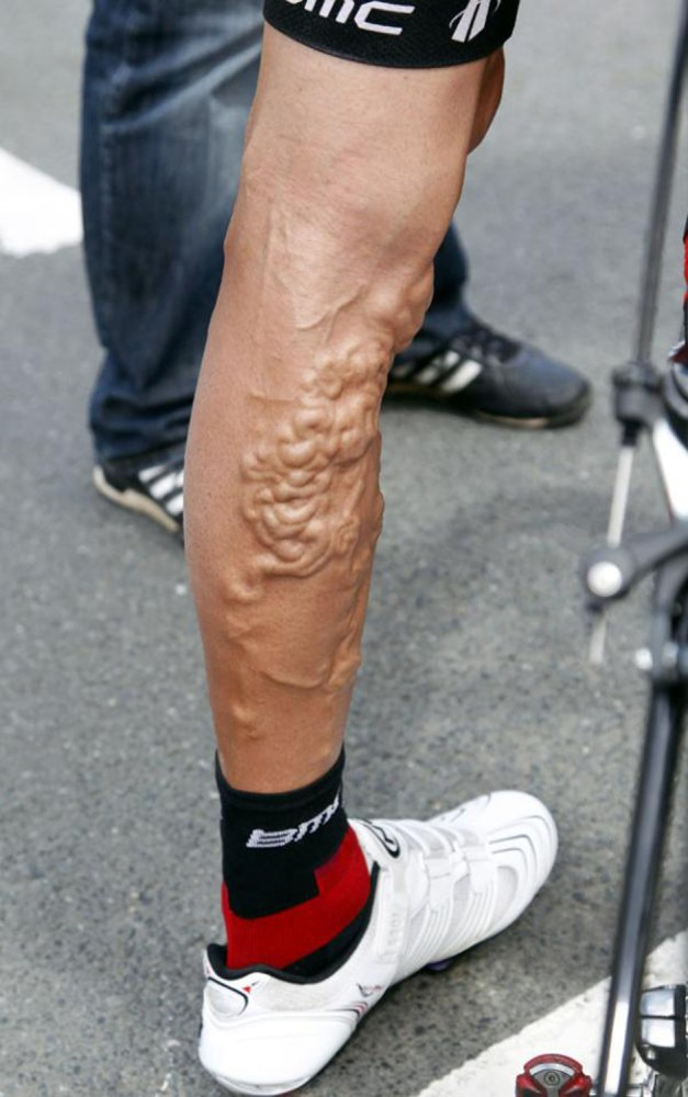 steroid abuse bodybuilding
