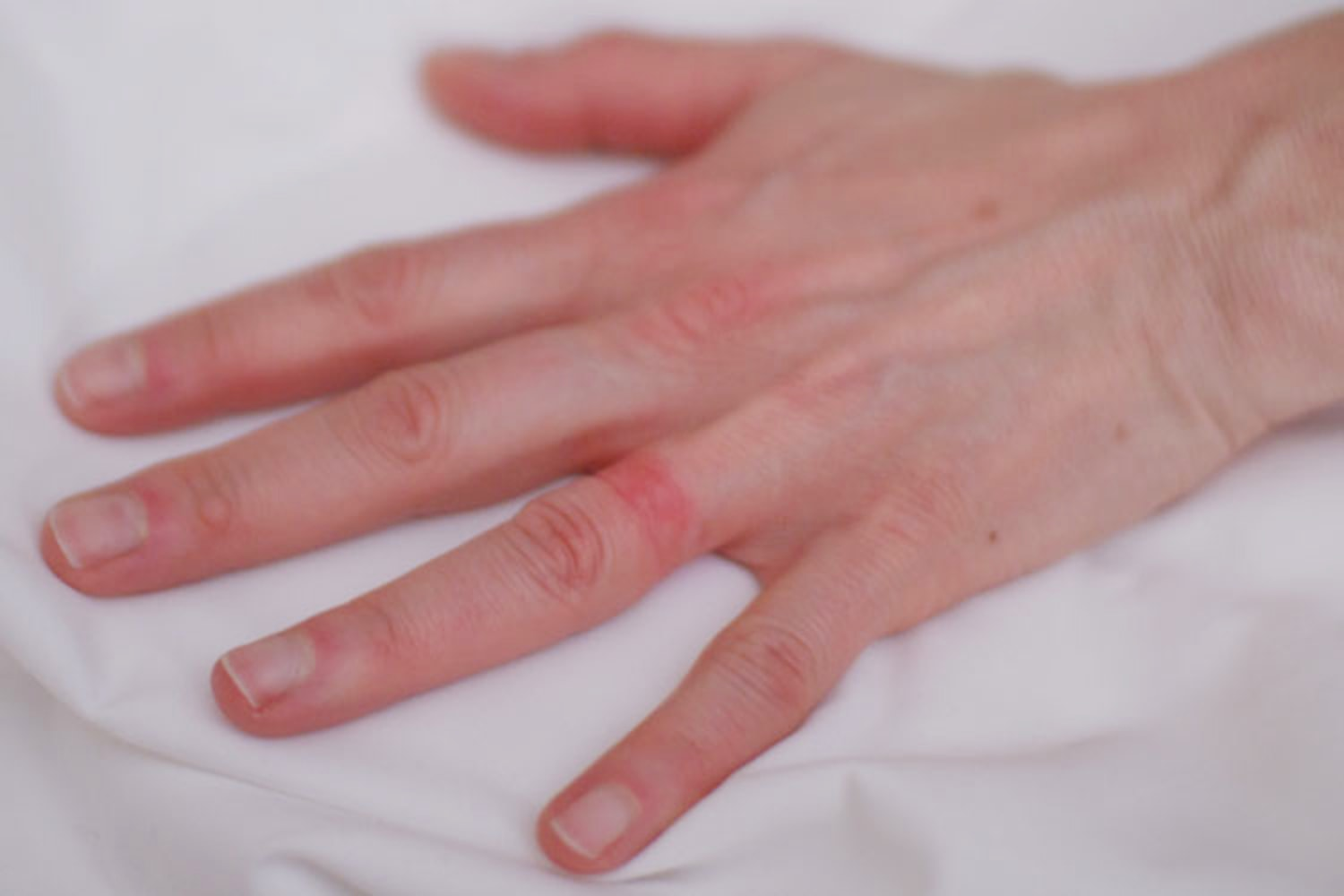 wedding ring dermatitis