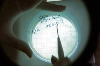 A laboratory technician counts isolated Escherichia coli (E. coli) bacteria