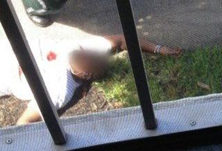 Image: Jermaine McBean shortly after he was fatally shot by police in Oakland Park, Fla.
