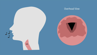 Image: Vocal cords