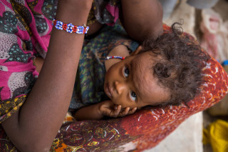 Image: A malnourished baby in Dubti Woreda, Ethiopia