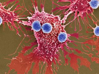 T lymphocytes and cancer cells, SEM