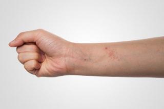new eczema drug dupixent wins fda approval   nbc news