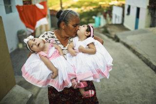 Image: Brazilian Twins Born With Zika Celebrate Their First Birthday