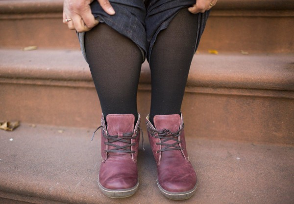 Image: Image:  Woman's swoolen leg