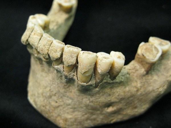 Image: Millennium-old teeth