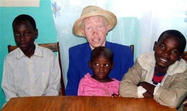 Image: Albino mother and dark-skinned children