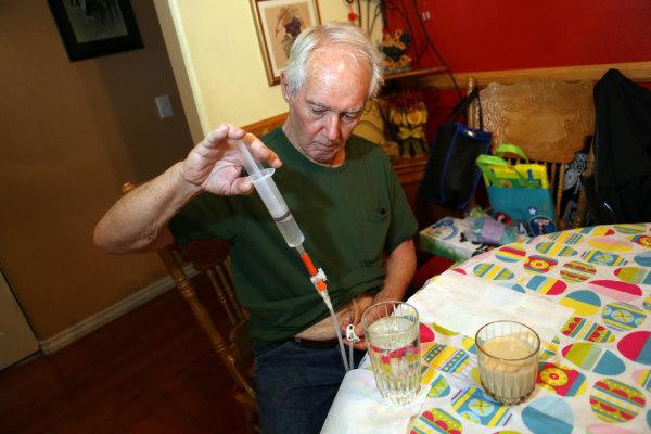 Image: Bob Hoaglan uses a feeding tube to eat due to ALS
