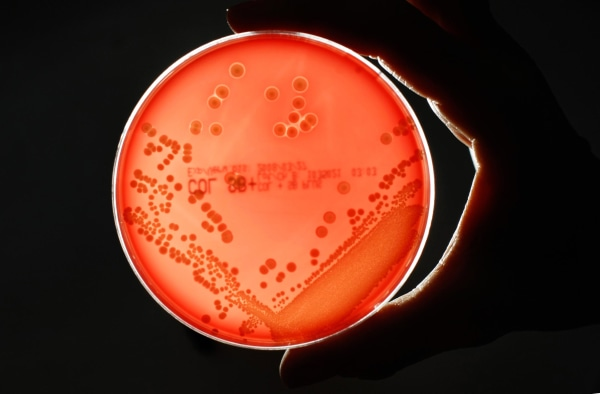 Image: MRSA bacteria strain is seen in a petri dish in a microbiological laboratory in Berlin