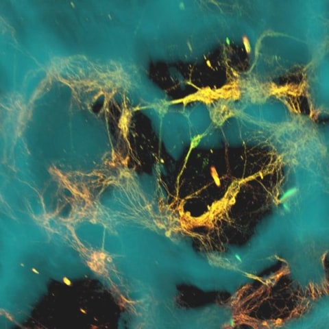 Image: Neurons in brainlike tissue