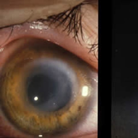 Image: Contact lens wear is linked to higher risk of keratitis