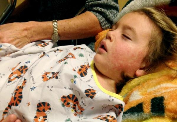 Image: A measles patient
