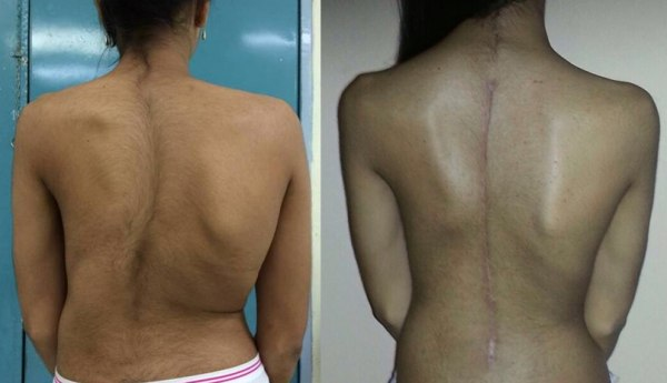 Before and after back surgery