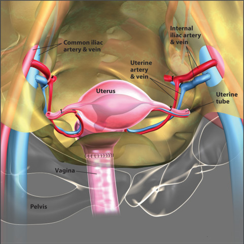 image: Uterus Transplant Illustration