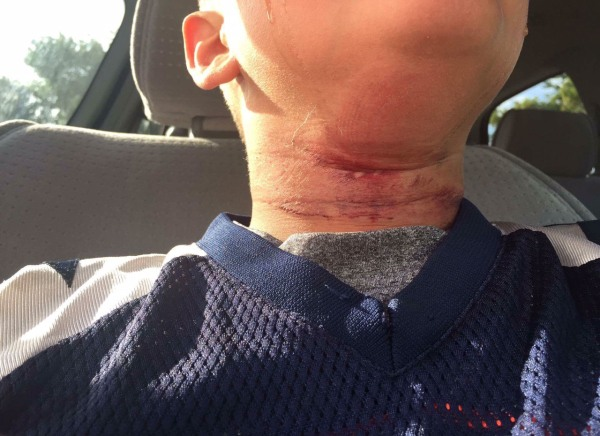 N H Officials Investigating Attack On Boy As Possible