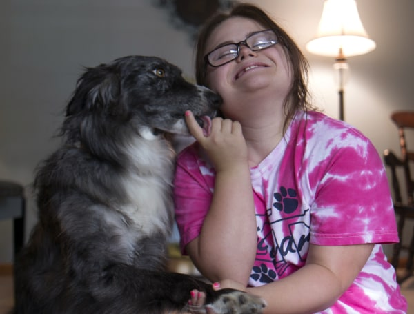 Rachel Mast, 14, plays with her dog, Dora at home in Olathe, KS, Aug. 6, 2013. Rachel has Downs Syndrome.