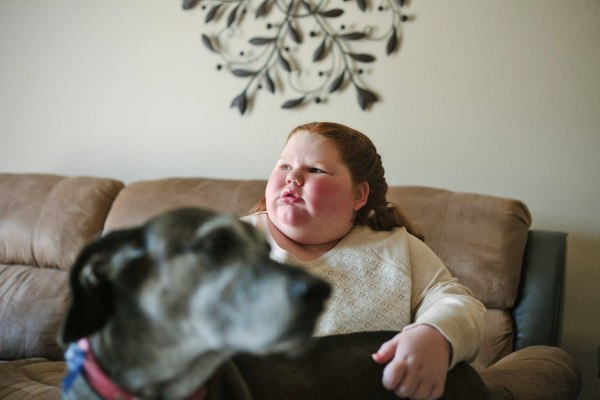 Cibolo, Tx., December 11. 2013: Alexis Shapiro, 12, had a brain tumor removed three years ago, when she was a normal-sized 9-year-old. Ever since the ...