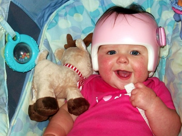 Terri Peters's daughter Kennedy had a flat spot on her head and wore a little pink helmet for three months to correct it.