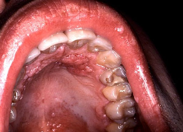 The human papilloma virus can cause head, neck, mouth, cervical and penile cancers.