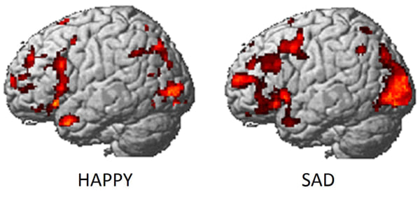 Brain scans show a person who is happy, left, and sad.