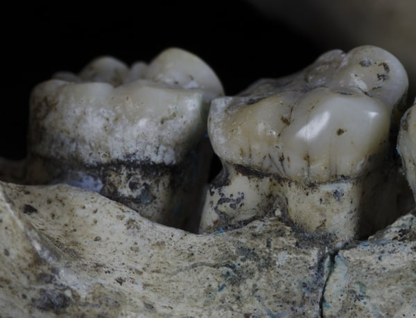 This ancient hominid jaw has marks suggesting it experienced toothpicking.