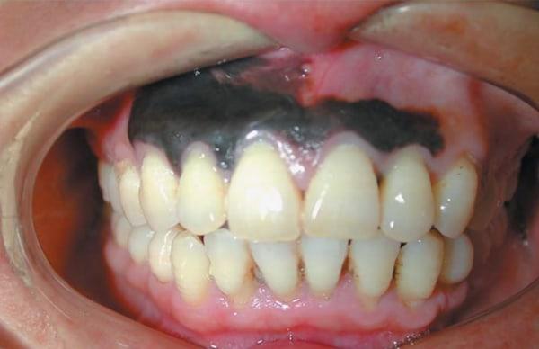 melanoma of the gums