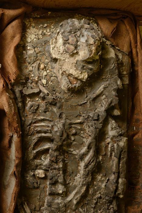 Image: Upper body and skull