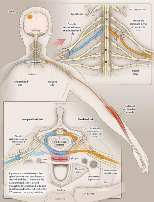 Image: Medical Nerves