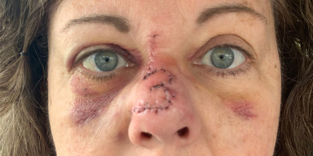 After decades of tanning, freckle on woman's nose turns out to be skin cancer