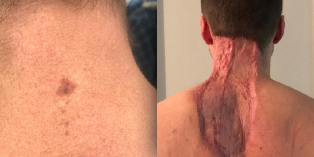 Neck Spot Diagnosed As Skin Cancer Man Warns About Mole