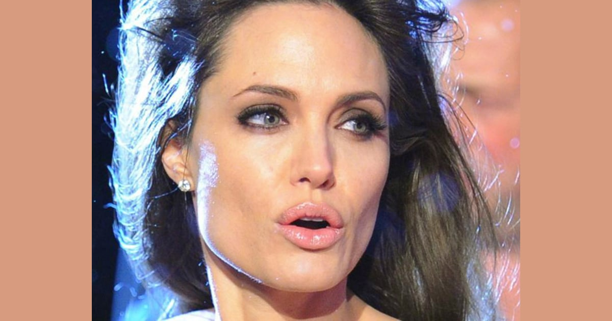 Celebrity lips: Real or fake?