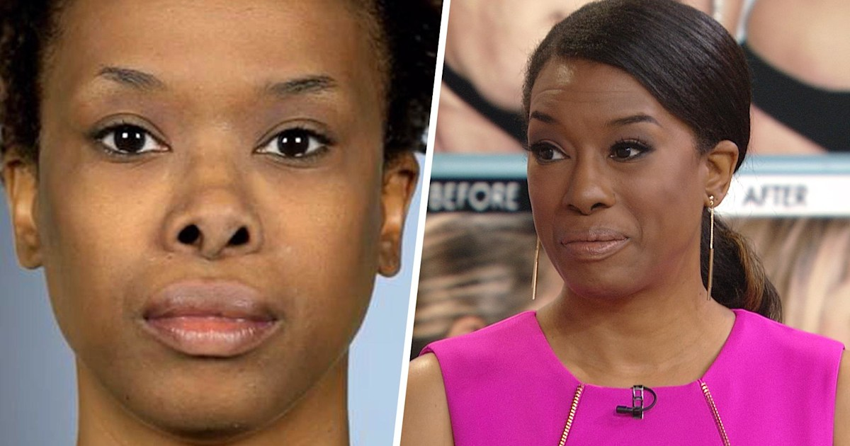 2 Women Share Their Stories Of Botched Plastic Surgery